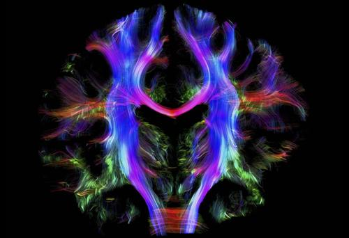 A kaleidoscope of colour reveals a map of pathways inside the brain of a young healthy adult.